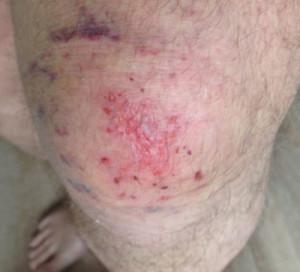 verletztes Knie